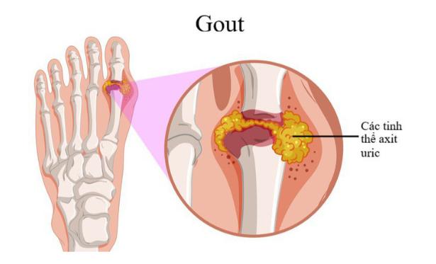 Bệnh gout gây nhiều ảnh hưởng tới sức khỏe người bệnh