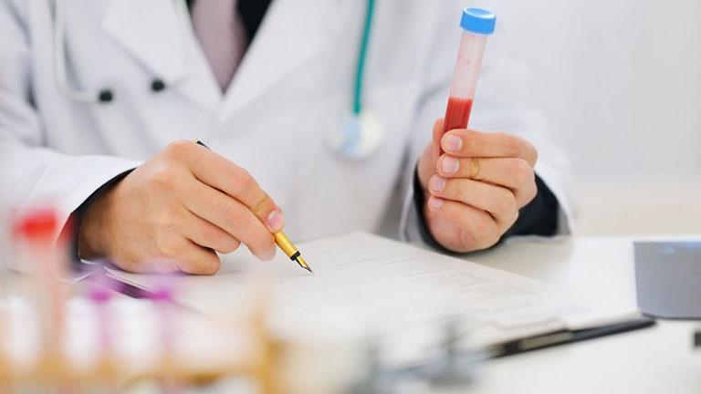 Chỉ số Acid Uric rất quan trọng trọng chẩn đoán, theo dõi và điều trị bệnh