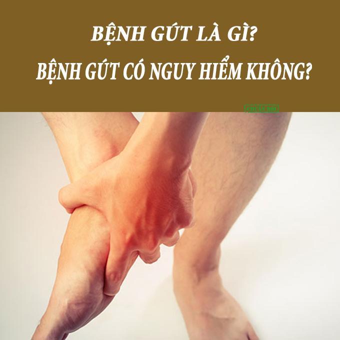 Bệnh gout có nguy hiểm không là vấn đề được nhiều người bệnh quan tâm