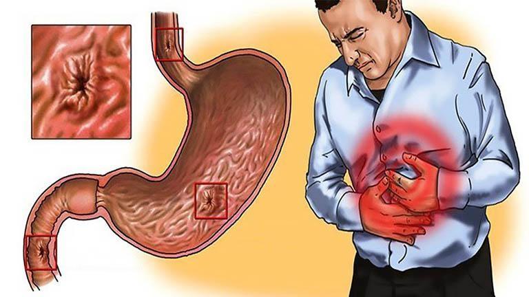 Không sử dụng thuốc Ibuprofen trong trường hợp bị viêm loét dạ dày
