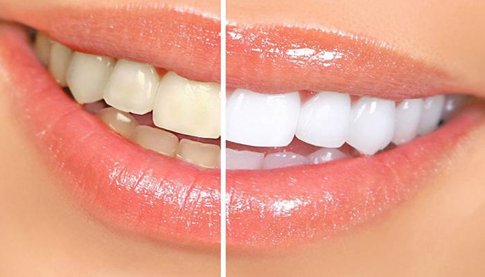 mẹo vặt làm trắng răng đơn giản