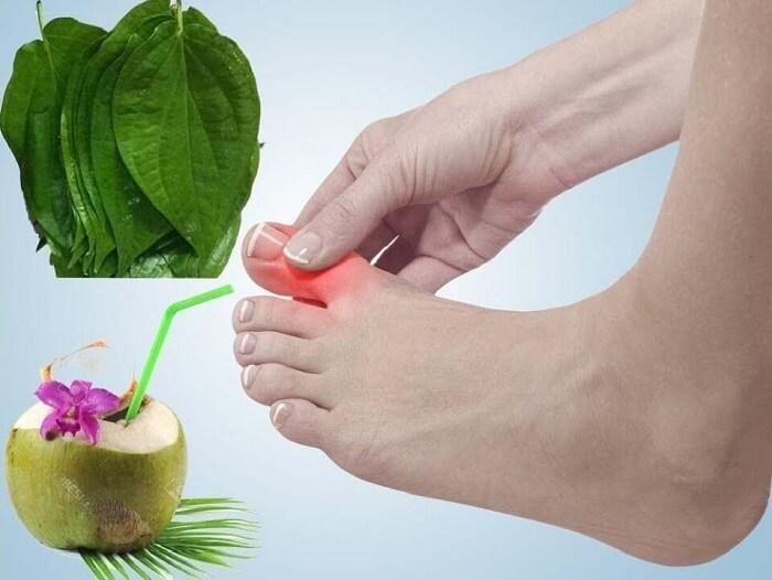 Chữa bệnh gout bằng lá trầu không và dừa xiêm