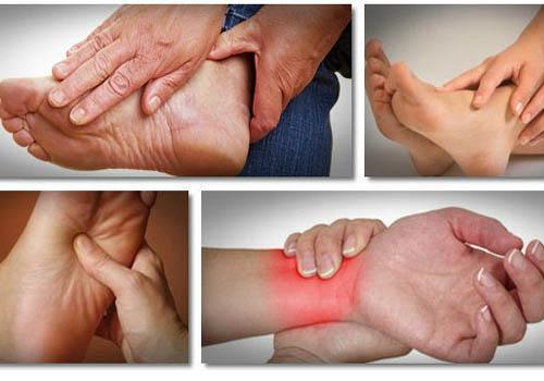 Sưng đau các khớp ở bệnh nhân Gout