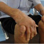 Bệnh gout gây biến dạng khớp, hỏng khớp