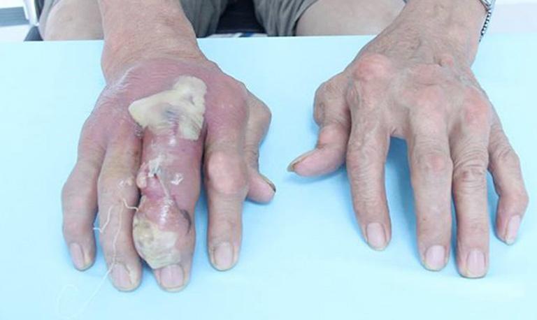 Hạt tophi vỡ có thể gây nhiễm trùng và hoại tử