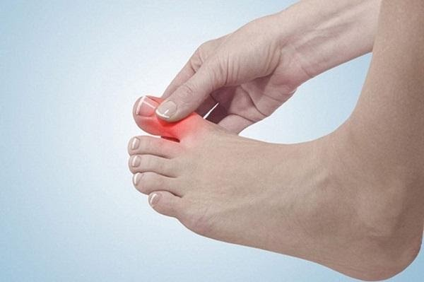 Đau khớp ngón chân là bệnh gì